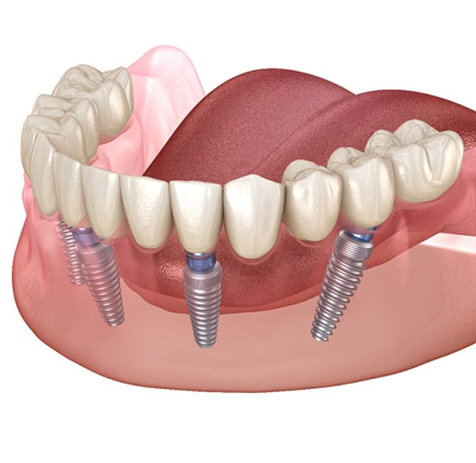 all on 4 dental implants cost in New Braunfels